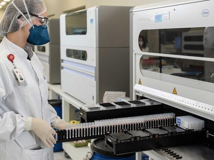 Ilmuwan Temukan Cara Hasil Cepat Tes COVID-19 Massal
