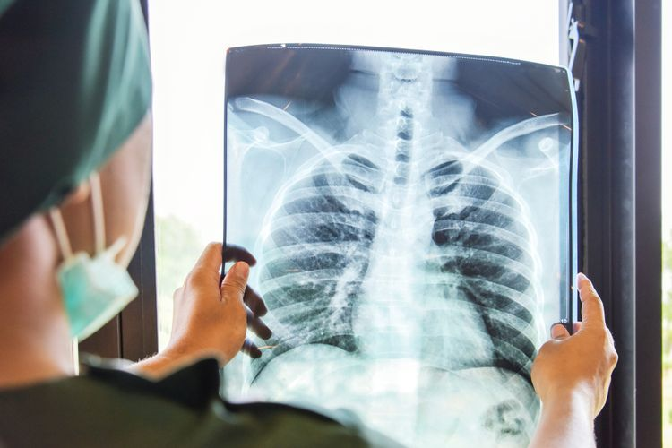 Teknologi Ini Tunjukkan Pasien Covid-19 Alami Kelainan Paru Hingga 3 Bulan